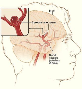 Το ανεύρυσμα εγκεφάλου