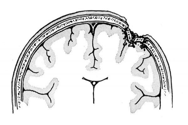 ραντεβού μετά από τραυματική εγκεφαλική βλάβη