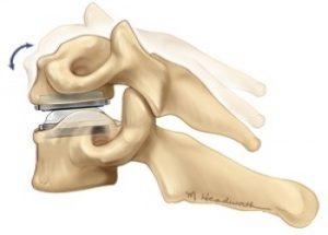 Η επέμβαση αυτή διατηρεί την κίνηση ανάμεσα στους δύο σπονδύλους  (motion preservating surgery)